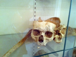 Human bones on display in the Old Chapel on Castleton State College campus. (Joanna Tebbs Young / photo)